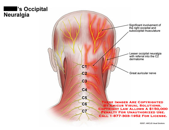 amicus,injury,pain,occipital,neuralgia,C1,C2,C3,suboccipital,muscles,musculature,referral,dermatome,auricular,nerve
