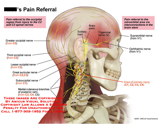 amicus,injury,pain,referral,retroorbital,occipital,C2,C3,interconnection,solitary,tract,trigeminal,nerve,ophthalmic,supraorbital