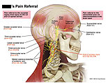 Pain referral to retroorbital area via interconnections.