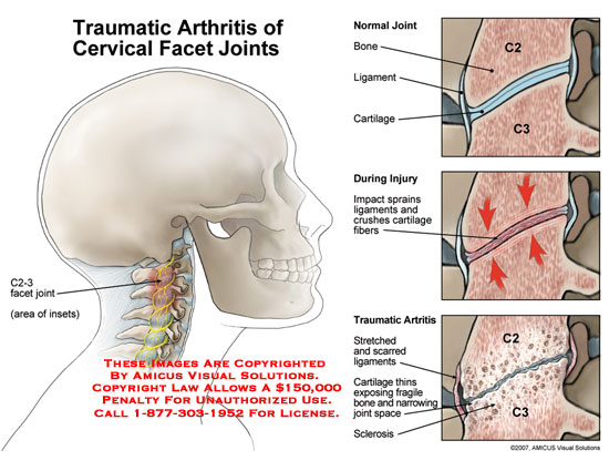 amicus,injury,traumatic,arthritis,cervical,facet,joints,crush,ligaments,cartilage,sBill Carred,thin,sclerosis,C2-3