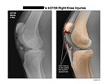 Fracture of patella with superior displacement.