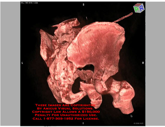 3D rotating model of complex posterior acetabulum fracture.