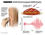 Needle electrode detecting ions in muscle contractions.