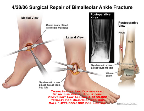 Medial and lateral screws placed in tibia and fibula.