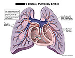Emboli scattered in both lungs with decreased oxygen return.