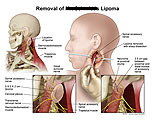 Location of lipoma in neck, and sharp dissection.