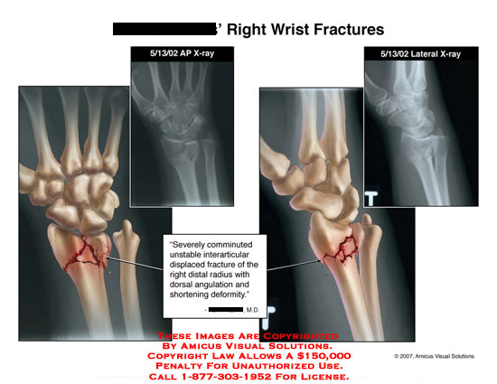 Medical diagrams and resources regarding Comminuted fracture of distal radius with dorsal angulation..