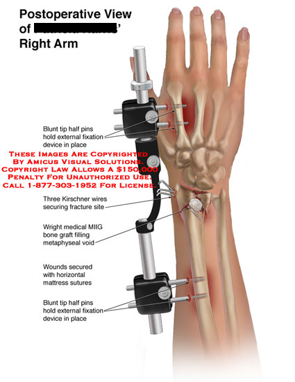 External fixation device and K-wires stabilizing wrist fracture.