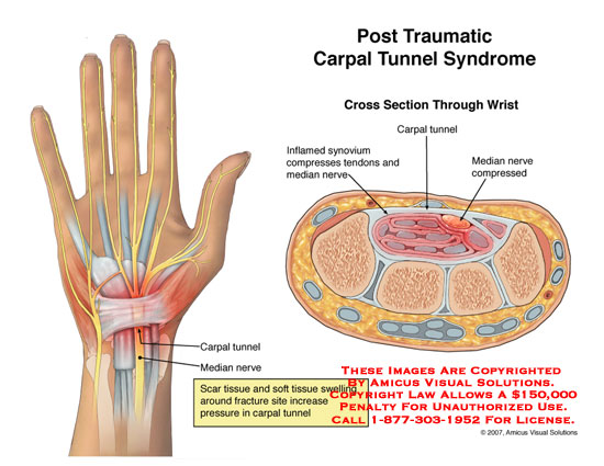 amicus,injury,carpal,tunnel,syndrome,post,traumatic,posttraumatic,synovium,nerve,tendon,median,swelling,wrist,fracture