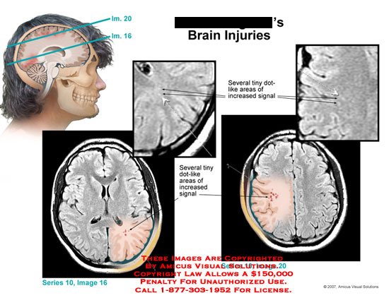 amicus,injury,brain,MRI,signal,head