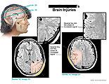 Tiny dot-like areas of increased signal on brain MRI.