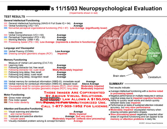 Medical diagrams and resources regarding Neuropsych test results listed on a chart..
