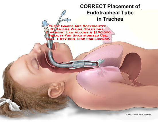 Girl with endotracheal tube in trachea.