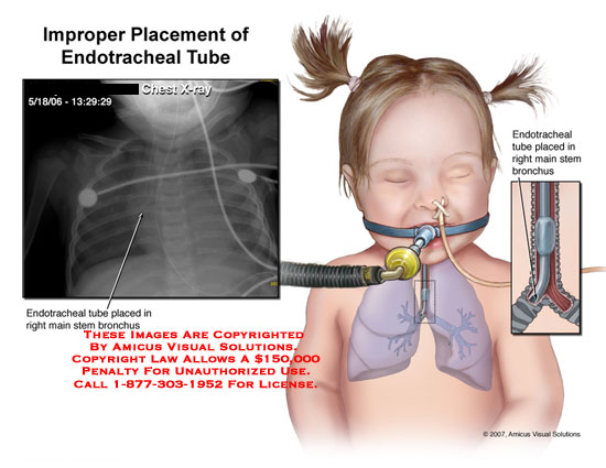 amicus,injury,malpractice,endotracheal,tube,placement,esophagus,incorrect,wrong,improper,x-ray