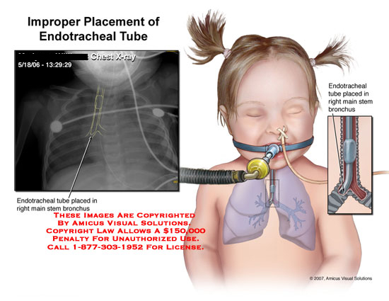 X-ray showing girl's endotracheal tube in the esophagus.