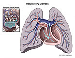 Darkened lungs with inset of compromised gas exchange in alveoli.
