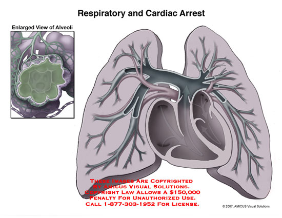 amicus,medical,malpractice,respiratory,cardiac,arrest,fluid,lung,alveoli,alveolus