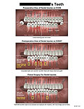 Pre- and Post-operative views of teeth removed and implants.