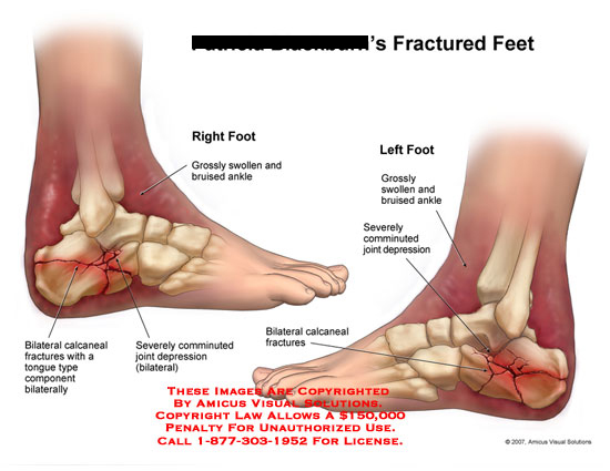 Right and left feet with calcaneus fractures and ankle bruise.
