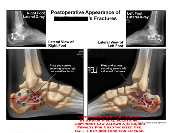 amicus,injury,postoperative,x-ray,calcaneus,fracture,plate,screw,fixation
