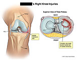 AP and superior views of bucket handle meniscus tear.