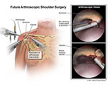 Arthroscopic acromion shaving and distal clavicle removal.