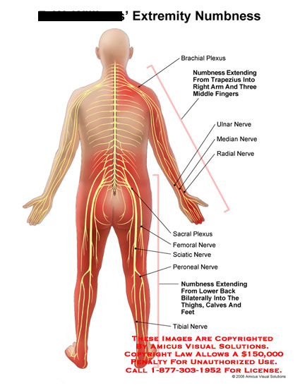 Medical diagrams and resources regarding Brachial and sacral plexus with numbess in extremity nerves..