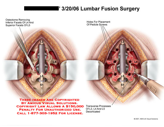 amicus,surgery,lumbar,fusion,facets,facetectomy,osteotome,pedicle,screws,holes,decorticated