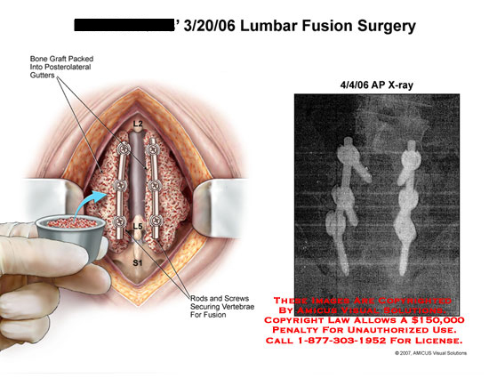 Medical diagrams and resources regarding Fusion with screws and rods, with bone graft placement..