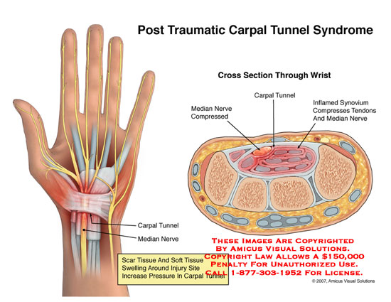 Medical diagrams and resources regarding Inflamed synovium shown compressing on median nerve..