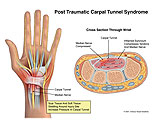 Illustration of amicus,injury,carpal,tunnel,syndrome,wrist,synovium,inflamed,trapping,nerve,trapped,compressed,median,tendons,scar,swelling