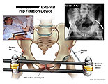 External fixation device attached to pelvis.
