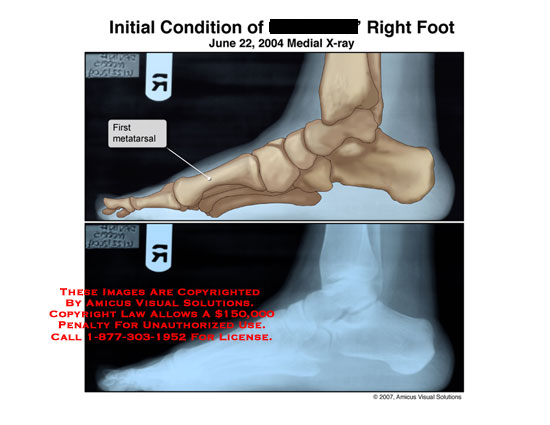 amicus,injury,radiology,x-ray,xray,foot,metatarsal,first,lateral,medial,side,bones