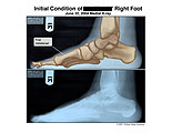 Illustration of amicus,injury,radiology,x-ray,xray,foot,metatarsal,first,lateral,medial,side,bones