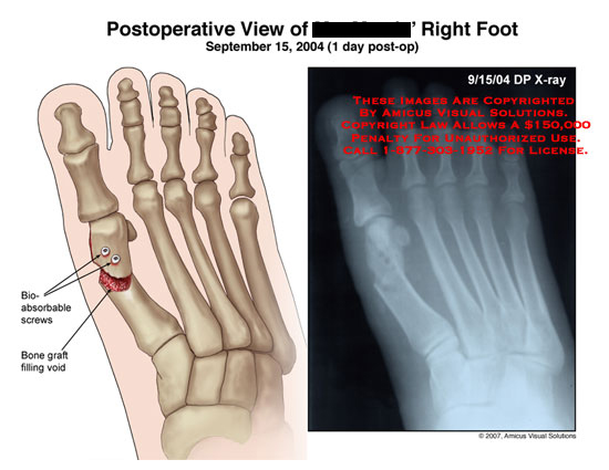 amicus,surgery,radiology,postoperative,x-ray,xray,foot,MTP,joint,screws,absorbable,graft,void,metatarsal,bones