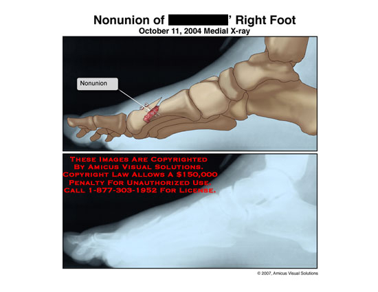 Medial illustration of X-ray showing nonunion of 1st metatarsal.