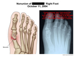 Illustration of X-ray showing nonunion of 1st metatarsal.