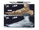 Illustration of amicus,radiology,injury,first,1st,metatarsal,x-ray,xray,MTP,joint,nonunion,union,malunion,medial,toe