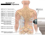 Summary of multiple facet joint injections from T10 to S1.