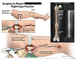Reaming of femur and insertion of antegrade femoral rod.