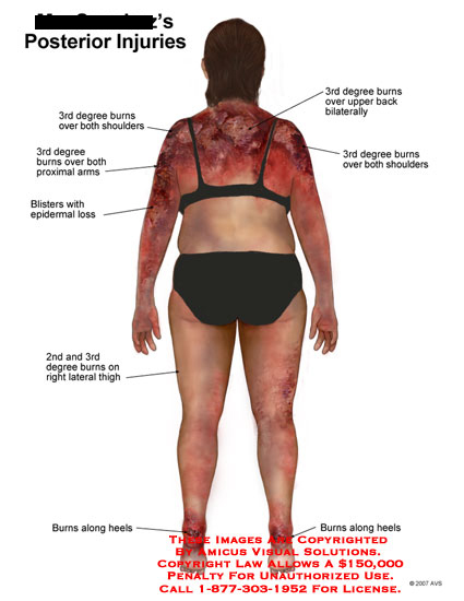 amicus,injury,posterior,body,summary,burns,degree,2nd,3rd,back,blisters,epidermal,arms,heels,thigh