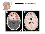 Intraparenchymal and intraventricular hemorrhages illustrated on CT.