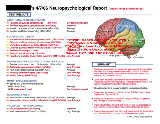 Test results and summary next to diagram of brain.