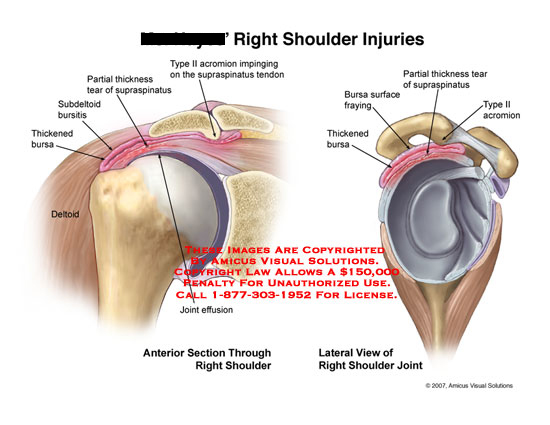 amicus,injury,shoulder,injuries,bursa,bursitis,subdeltoid,tear,supraspinatus,type,ii,2,acromion,impingement,impinging,joint,effusion
