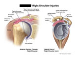 Bursitis, joint effusion, supraspinatus tear, and type II acromion.