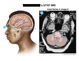 MRI slice through brainstem showing intraparenchymal hemorrhages.