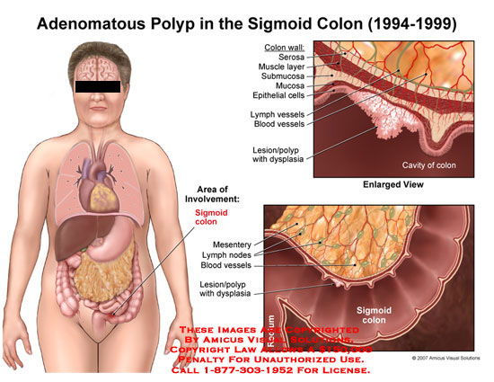 adenomatous polyp in sigmoid, Human body