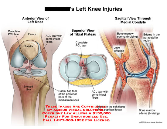 Three views of torn ACL, torn PCL, meniscus tear, and bone edema.