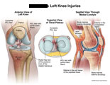 Illustration of amicus,injury,knee,joint,meniscus,radial,flap,tear,acl,pcl,torn,edema,effusion,bone,tibia,patella,parapatellar,bruise,popliteal