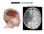 Illustration of brain deformity left behind when cyst is omitted.